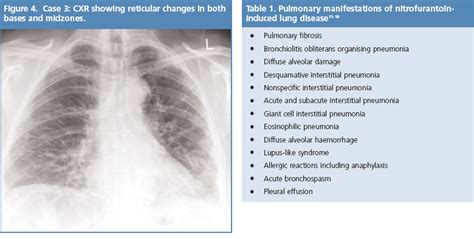 lung pattern classification pulmonary interstitial lung disease with chest x ray