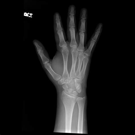 Types Of Wrist Fractures - Fracture Treatment Fractured Wrist Treatment