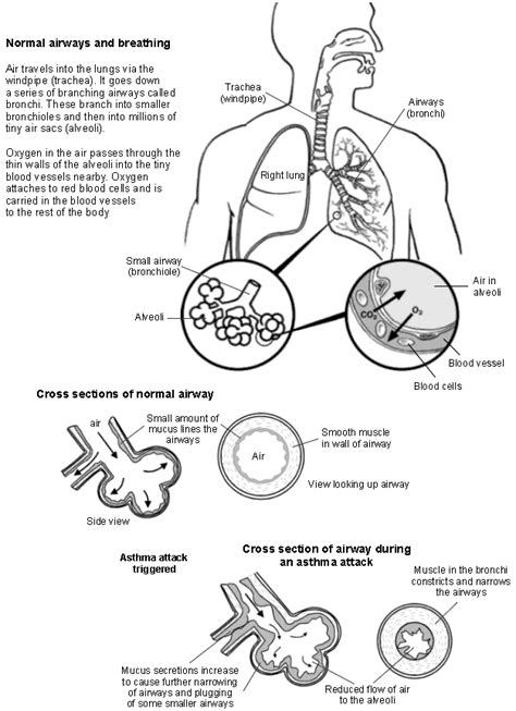 asthma diagram asthma what triggers causes asthma attacks uk patient