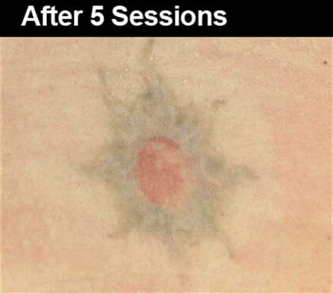 tattoo removal on black skin before and after laser removal before and after pictures wifh