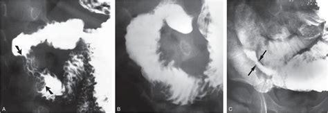 visceral trauma radiology key