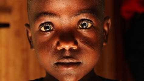 african grey inherited traits image gallery mutated people