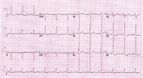lvh pattern collapse on the beach geeky medics