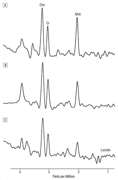 n acetylaspartate creatine ratio correlation of basal ganglia magnetic resonance