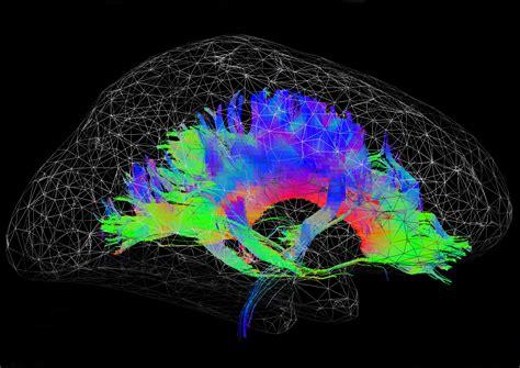 brain mohawk  neuro bureau