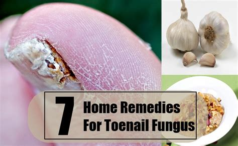 best toenail fungus treatments cures for toenail fungus