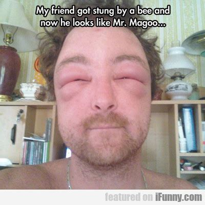 got stung by bee my friend got stung by a bee ifunny