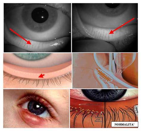 orzaiolo interno palpebra inferiore dermatiti palpebrali riconoscere blefarite calazio
