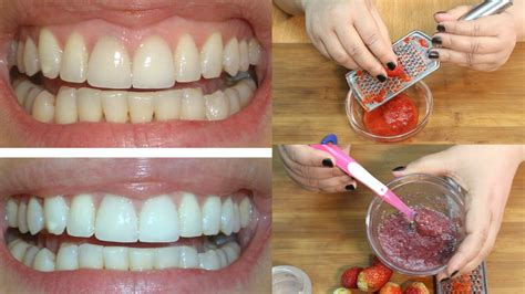 whiten  teeth naturally  home quickly instantly