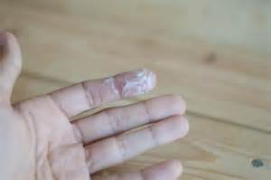6 white sticky pasty cervical fluid