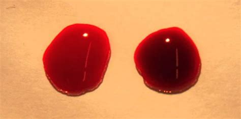 color of oxygenated blood tiny beads can deliver oxygen straight to the blood stream