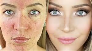 american perfection basement waterproofing 18 acne transformations that prove the power of makeup