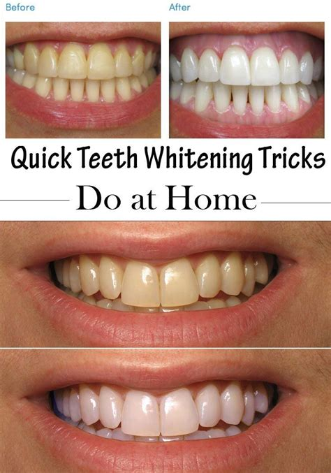 teeth whitening tricks to do at home teeth home