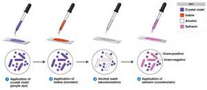 gram positive stain color gram staining principle procedure interpretation and