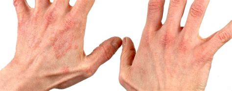 skin allergies beating allergies how to tell if you a skin allergy