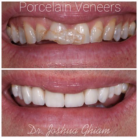 los angeles dentist porcelain veneers specialist l a