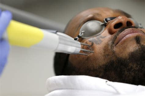 tattoo removal programs sponsored by the government parlors would to warn of impact on