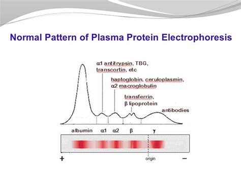 protein electrophoresis plasma proteins git block 1 lecture dr usman ghani ppt