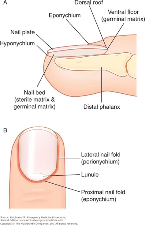 nail bed repair chapter 104 nail bed repair emergency medicine procedures 2e accessemergency