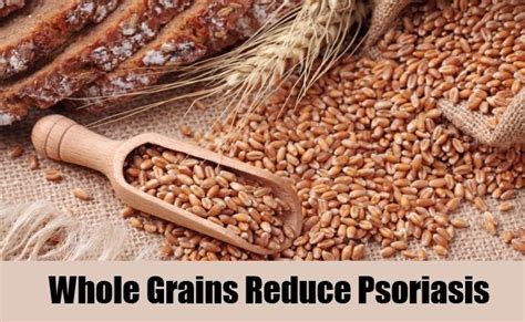 whole grains psoriasis 8 diets to treat psoriasis foods for psoriasis