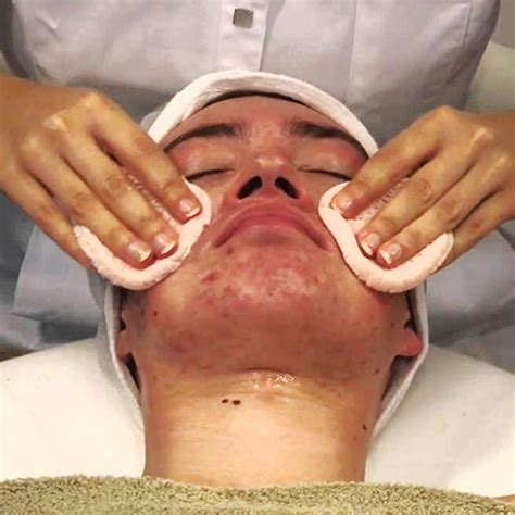 Wat Is Detox Behandeling by Acne Behandeling Door Schoonheidssalon Care Geldrop