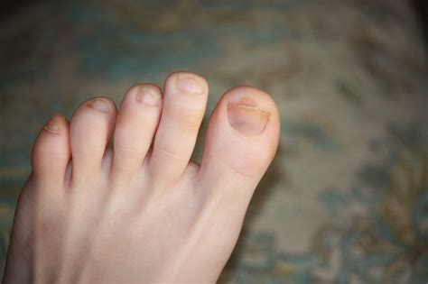 what is the inn color for toes for spring how to clear up dark toenails with pictures ehow