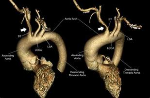 Three Dimensional Contrast Enhanced Mr Angiography Of Aortic Dissection A Pictorial Essay by Three Dimensional 3d Reconstruction Of Contrast Enhanced Ct