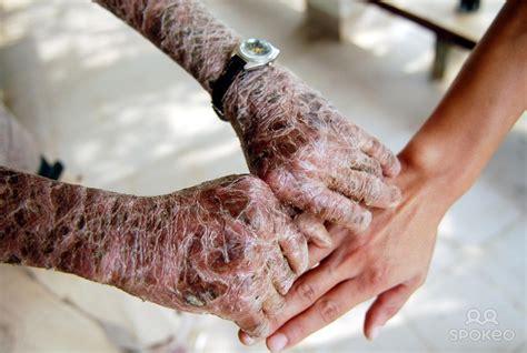 scaly skin skin information