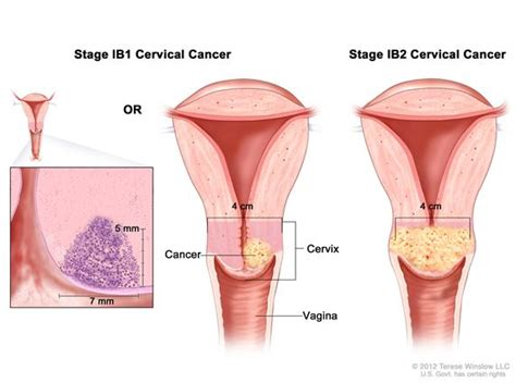 how deep is the vsgina cervical cancer treatment national cancer institute