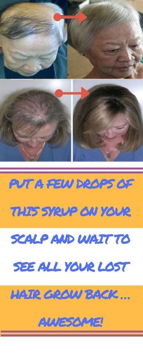hair follicles in older women narrowing 25 best ideas about hair follicles on pinterest hair