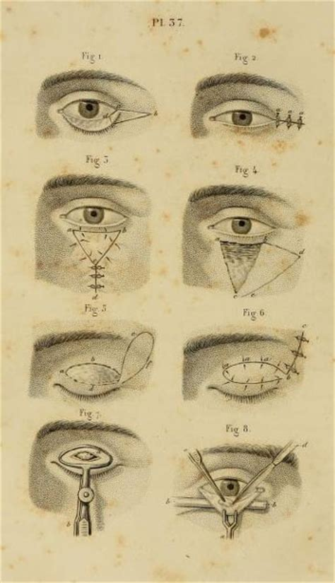 1000 images about ophthalmology oldies on