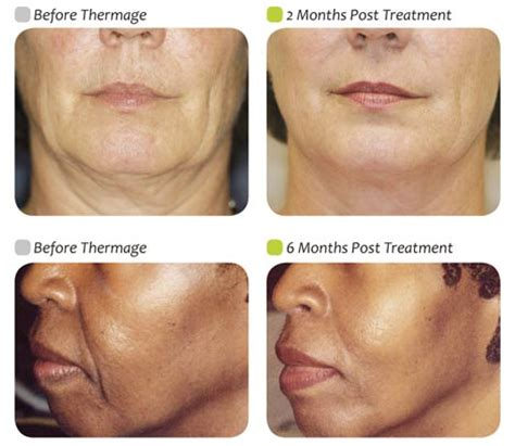 Jowls And Sagging Around Mouth Treatment | sagging jowls under eye bags short hairstyle 2013