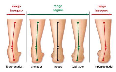 zapatillas pisada supinadora estudio de la pisada mariavillalbaquiromasaje