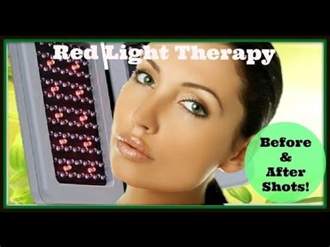 light therapy how often light therapy before and after
