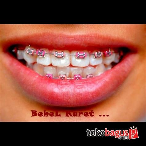 cool colors for braces the gallery for gt cool braces colors combinations