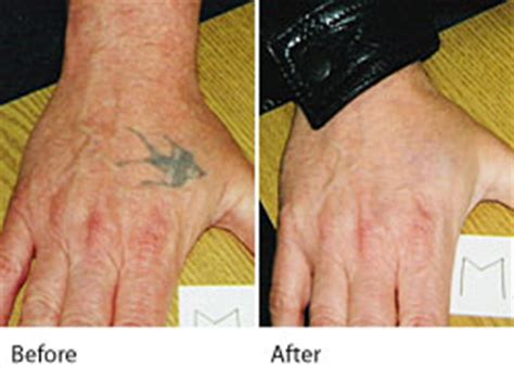 tattoo removal deals leeds tattoo removal leeds laser tattoo removal wakefield