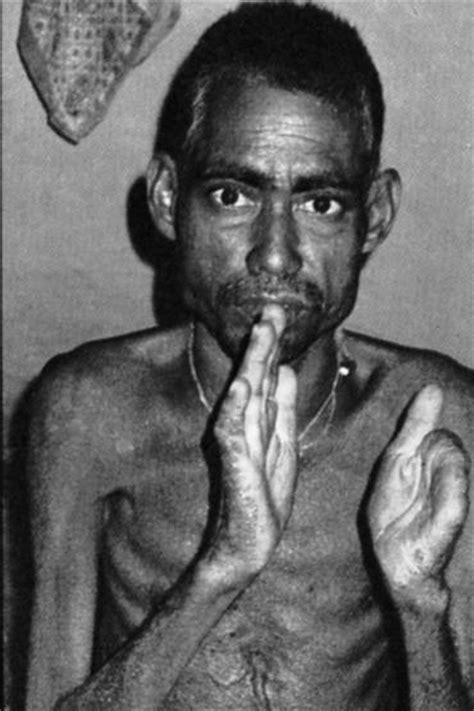 kazi nazrul islam biography in english arsenic poisoning in bangladesh india