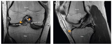 7 Tesla Mri Locations Knee Radiology Key