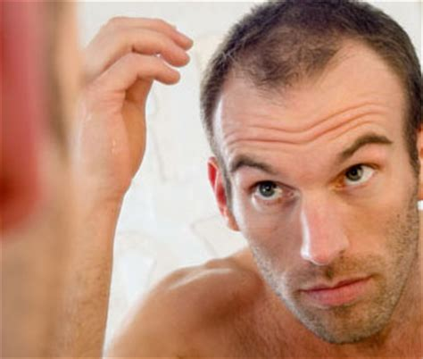 male pattern hair loss or stress hair loss studio free hair loss information advice from