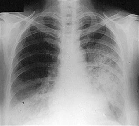 sle chest x report symptoms of vasculitis johns vasculitis center
