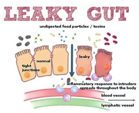 gut intelligence the wisdom to the the guts to do something about it books healing leaky gut and reversing food sensitivities gillian b