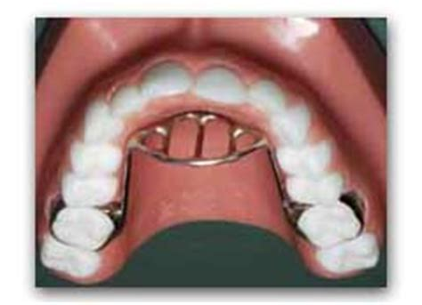 Orthodontic Tongue Crib by Are You Concerned About Your Child S Thumb Habit