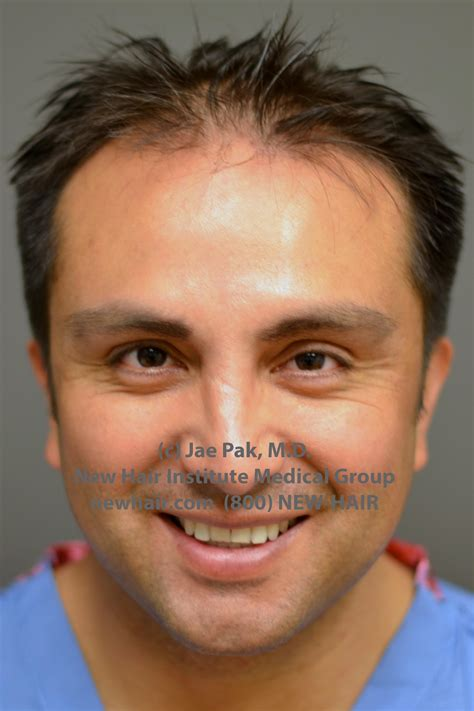new hair transplant before after hair transplant with dr pak wrassman m d