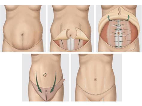 Plastic Surgery After C Section by Mini Abdominoplastia E Abdominoplastia Qual A Diferen 231 A