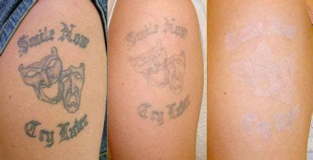 tattoo removal the non surgical group