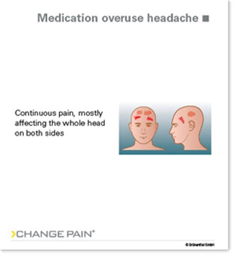 Medication Overuse Headache Detox by Change Picture Library