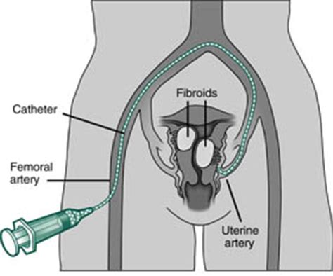 how long for uterus to shrink after c section uterine artery embolization causes symptoms treatment