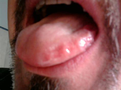 bolle all interno della bocca afta sotto la lingua cura della pelle