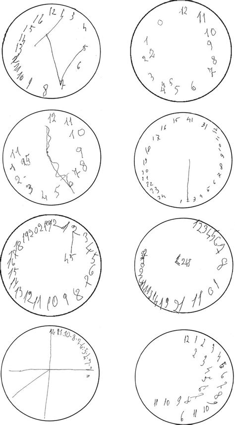 clock drawing test drawing disorders in alzheimer s disease and other forms