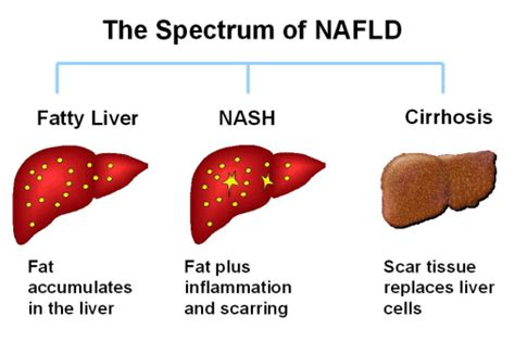 Your Liver Is Already Detoxed by How Obesity Affects Your Liver Dr Sharma S Obesity Notes
